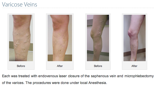 Varicose Veins Heart Specialists Group